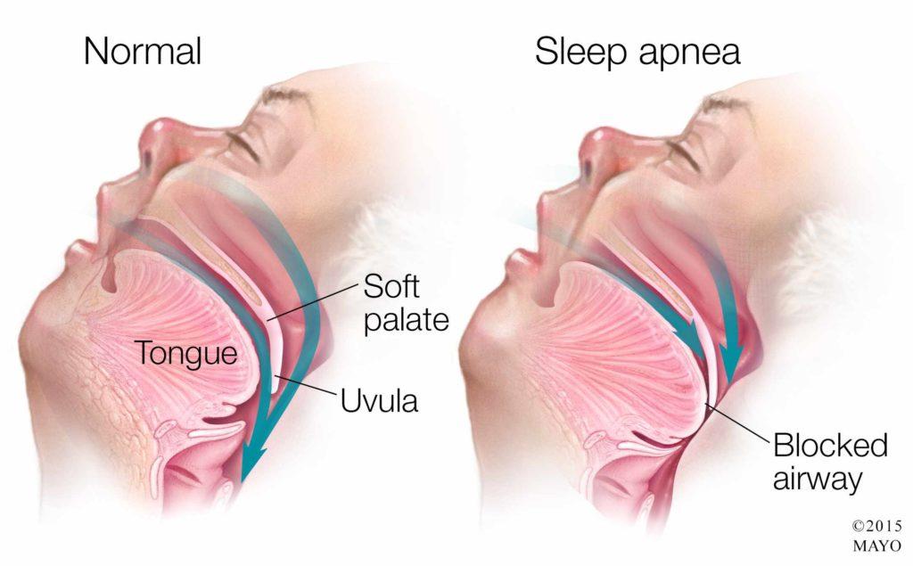 Нормальное дыхание ночью и дыхание с апноэ \ Фото mayoclinic.org