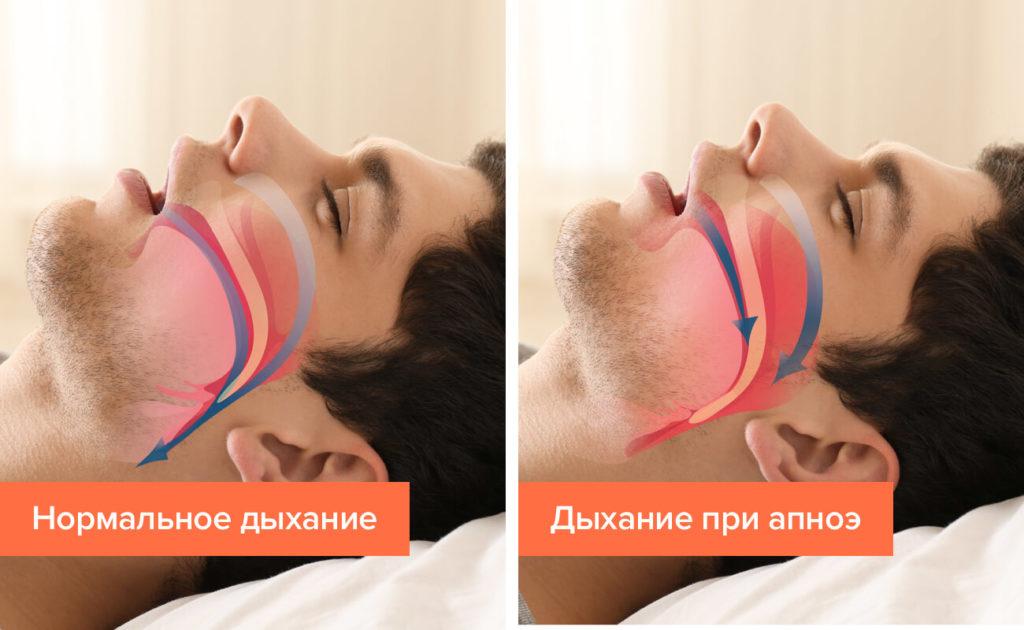 нехватка воздуха ночью во время сна