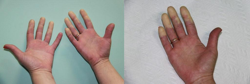 пальцы рук при болезни Рейно